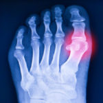X-ray showing high uric acid and urate crystals in the joints.